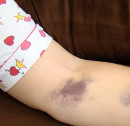 Bruised arm after IV, muscle twist