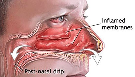 How do you clear a stuffy nose fast or instantly?