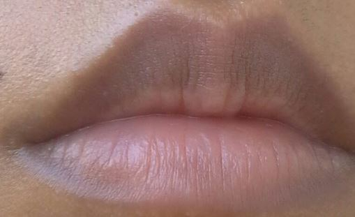 How to get rid of dark lips fast permanently naturally overnight