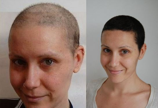Hair growth after chemotherapy - image source - etopical