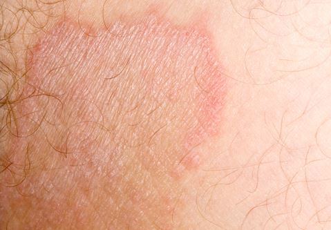 7 Common Causes of Itchy Groin and Skin Rash - Health Hype