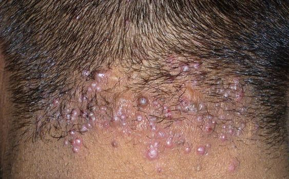 rash on back of head #9