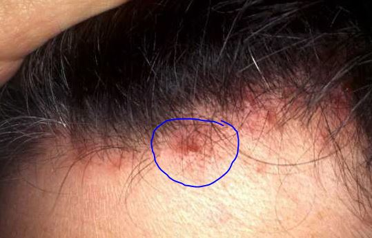 ... Causes, Small Painful, Itchy, Get Rid, Treat Scalp Pimples, Hair Loss