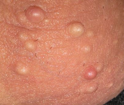 Pimple on scrotum or scrotum bump