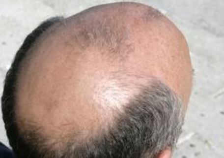 Does Saw Palmetto Work For Hair Loss
