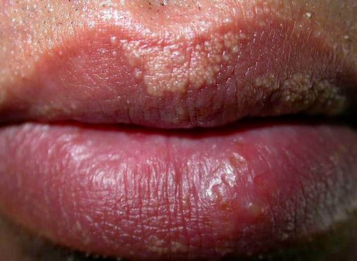 White bumps on lips fordyce spots