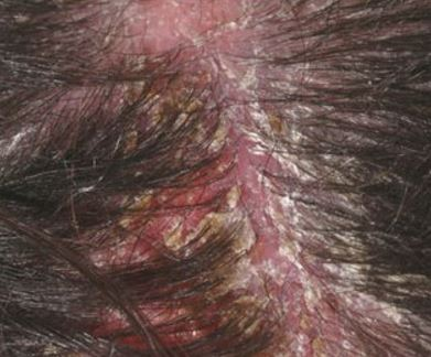 dry blood on scalp