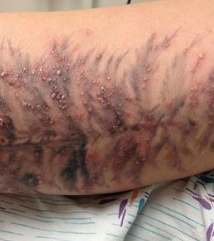 Tattoo Ink: Allergic Reaction Warnings - Skin and Beauty ...