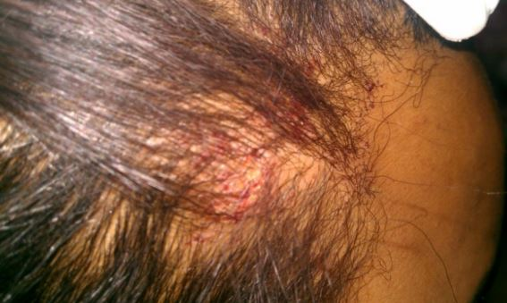 Red patches on the scalp, dry scalp and itching are some common symptoms of scalp psoriasis 1