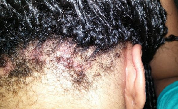 Itchy, bleeding scalp - Dermatology - MedHelp