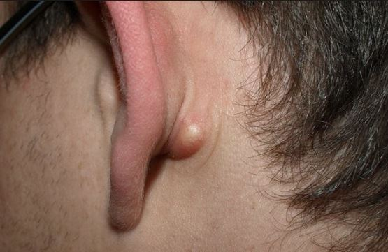 small hard lump behind ear