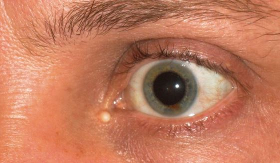 red lump at inner corner of eyelid - MedHelp