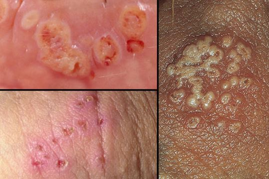 What Does A Herpes Rash On The Face Look Like - The Body