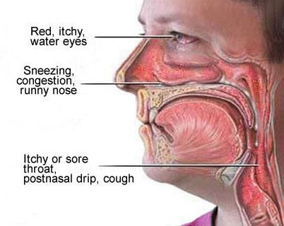 Constant Irritation in the Throat