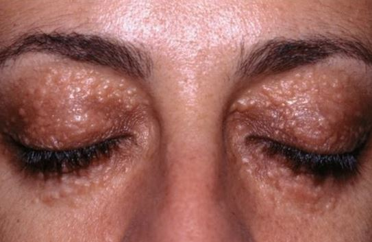 What causes rashes to form around one eye but not the ...