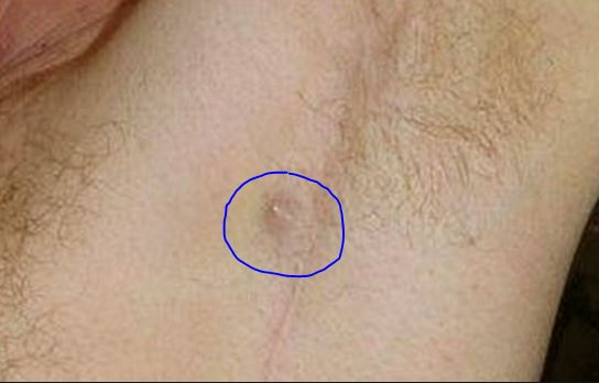 melanoma a serious type of skin (healthday)—a type of skin cancer called squamous cell carcinoma (scc) is increasingly common in the united states, so people need to be alert for signs of the disease, an expert says.