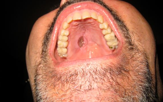 Nodules In Mouth 116