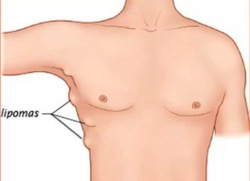 Inflamed lymph node gland breast