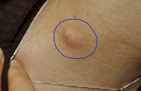 Shaving bumps on chest personally