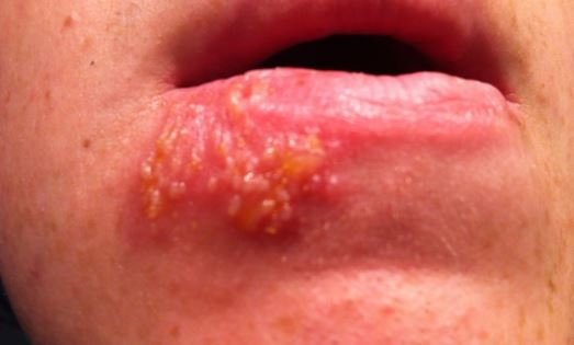 Cluster of small blisters on lip - second stage of a cold sore