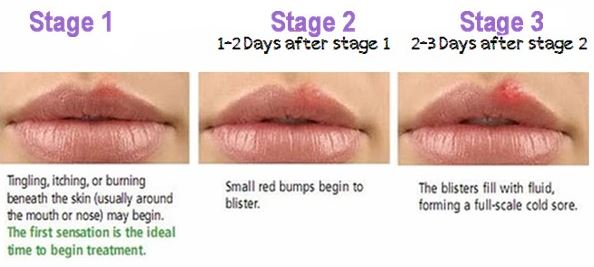 Stages of a cold sore Women's Health Advice
