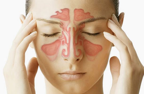 You can get sores from sinus infection
