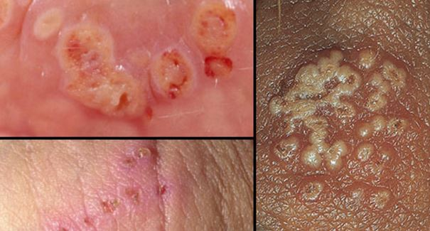 Genital herpes pictures. These should not be confused with normal pimples on vagina and labia lips