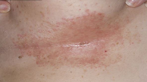 Hidradenitis Suppurativa: Causes, Symptoms, and Treatment