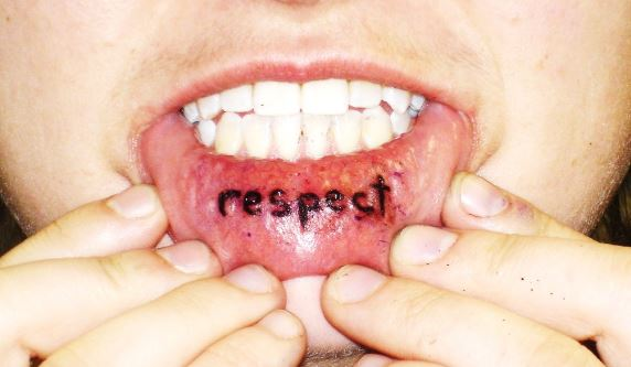 The lower lip may swell from a lit tattoo procedure