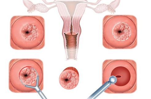 Cervical erosion causes, symptoms and treatment