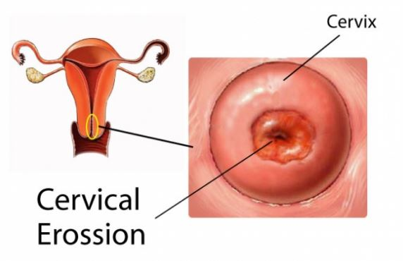 Cervical erosion, vaginal erosion or cervical ectropion