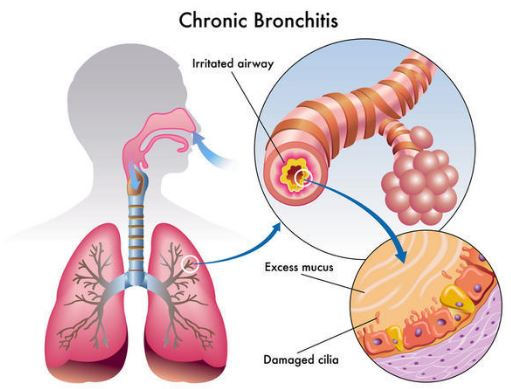 Bronchitis can lead to brown phlegm in throat and nose