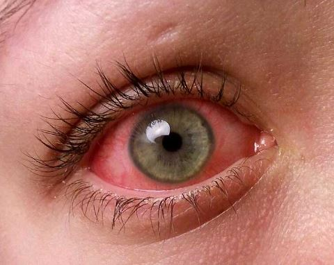 How to get rid of pink eye fast overnight