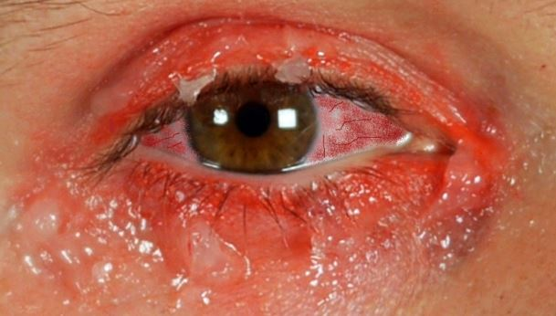 How to get rid of pink eye fast - symptoms include redness, tearing and itching