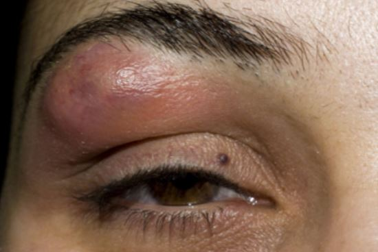 Pimple on Eyebrow, Under, Between, Near, Above, Swollen