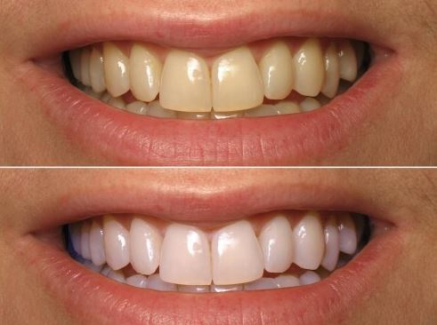 Teeth WHITENING naturally with TUMERIC ( a spice found in ... |Turmeric Teeth Before And After