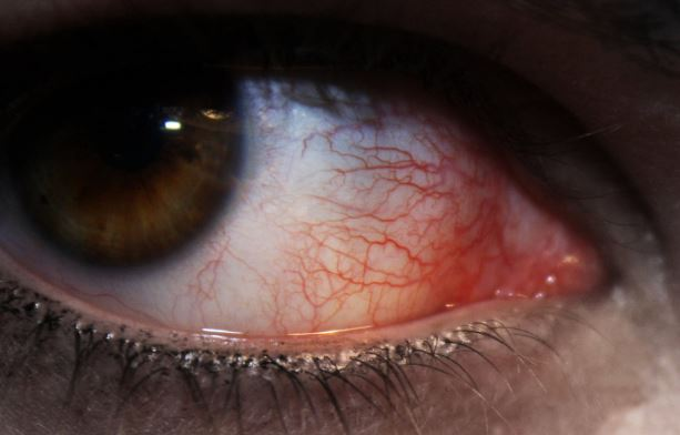 How To Get Rid Of Veins In Eyes Naturally
