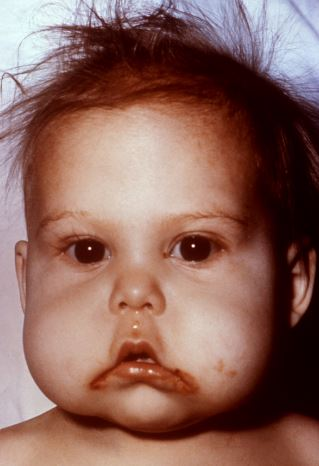 Anasarca causes and symptoms - Protein deficiency can lead to generalized edema in babies