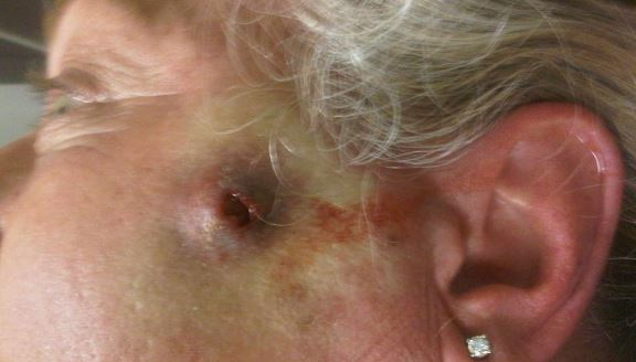 Wolf spider bite pictures and images