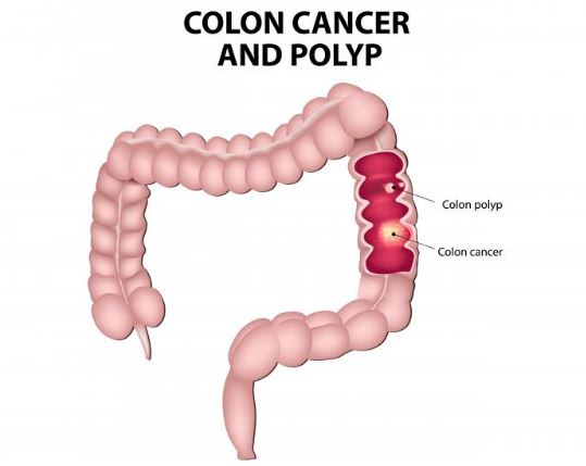 Colon Cancer Essay